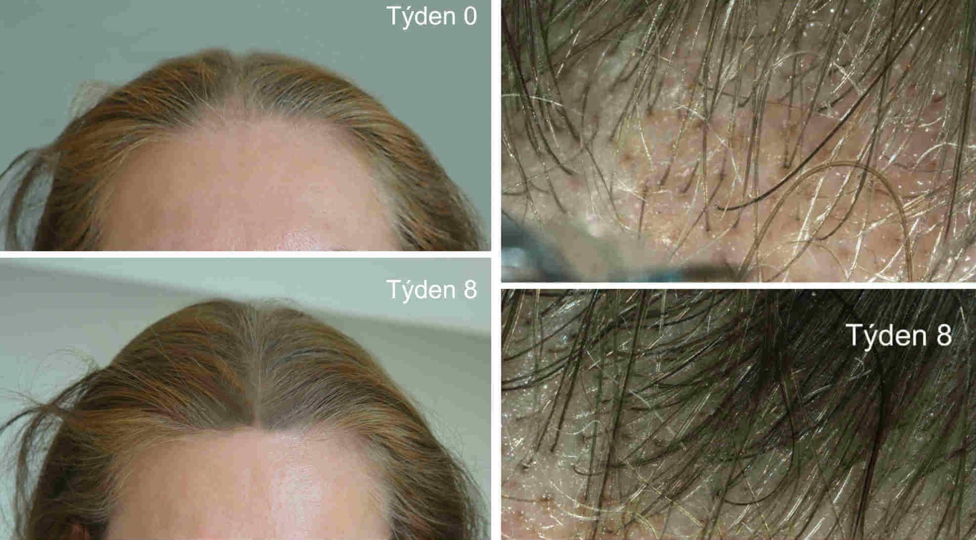 Výsledky před a po