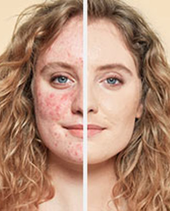 Rosacea: jak na make-up pro pleť se sklonem k začervenání?
