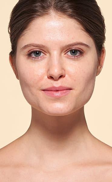 v_anim-oily-skin_1.jpg