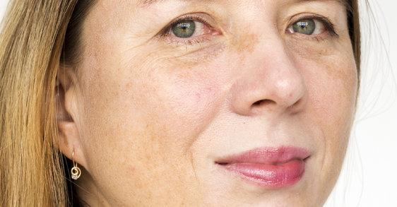 Stárnutí pleti a tmavé skvrny lze řešit