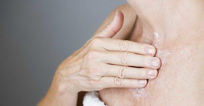 Je riziko rakoviny kůže v období menopauzy vyšší?