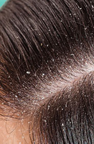 HUB_CONTENT_DHSC_CONTENT_23_FROM_A_HEALTHY_SCALP_TO_A_DANDRUFF_CONDITION.jpg