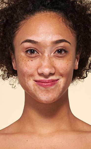v_anim-vitiligo_1.jpg