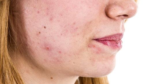 Co potřebujete vědět o akné v dospělosti?